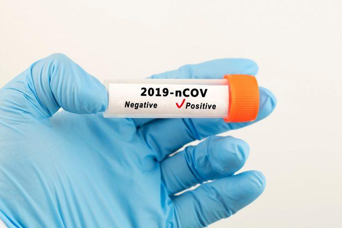 Miedo a dar positivo por coronavirus, ébola, gripe aviar, sífilis, sida o gonorrea.